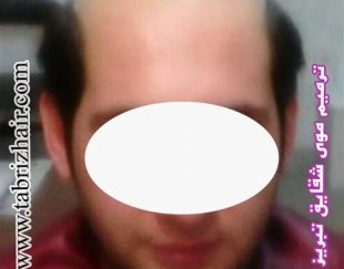 تخصصی ترین مرکز کاشت و ترمیم موی شقایق