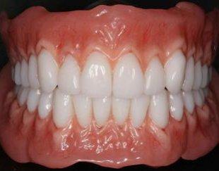 خداحافظی با هزینه های میلیونی ساخت ذست دندان