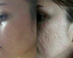 میکروندلینگ پاکسازی پوست