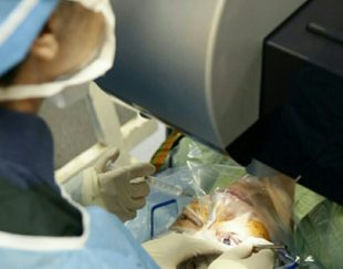 جراحی لیزیک و بلفارو پلاستی