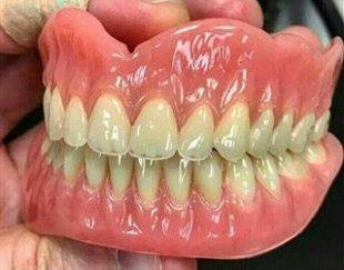 دندانسازی ساخت دست دندان مصنوعی با ضمانت در یک هفته