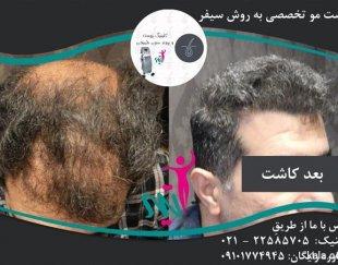 کاشت موی طبیعی با روش روز دنیا