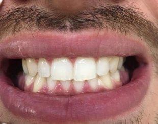دندانپزشکى …. جرم گیرى ، بروساژ ، بیلیچینگ