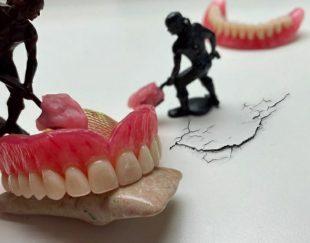 دست دندان مصنوعی متحرک ژله ای دندانسازی دندانپزشکی کرمان