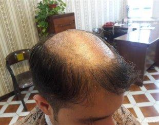 ترمیم موی افشان