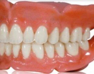 ساخت دندان مصنوعی برای افراد کاملا بی دندان