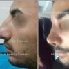 لیپوماتیک،پروتز سینه،جراحی بینی