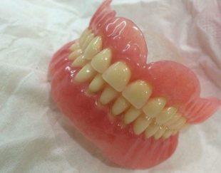 تعمیر انواع دندان مصنوعی متحرک