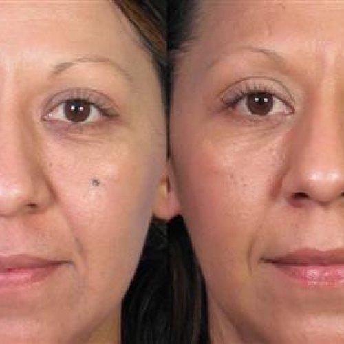 کلینیک دکتر صلح جو: درمان خال و توده های پوستی و زگیل تناسلی
