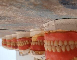دندانسازی دنرانپزشکی دندان مصنوعی متحرک