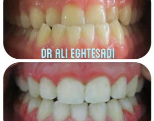 دندانپزشکی – تخفیف ٢٠٪