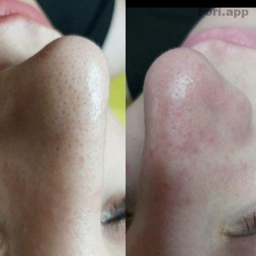 اموزش و انجام پاکسازی و فیشیال پوست با دستگاه پزشکی