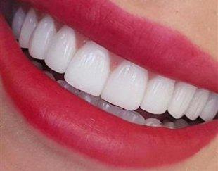 تخفیف ۲۰ تا ۵۰ درصدی خدمات دندانپزشکی
