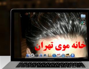 مرکز ترمیم موی تهران بدون عمل جرای