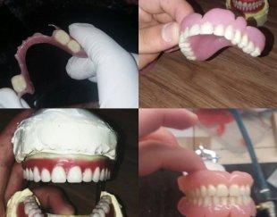 دندانسازی دنتاژ (۳۰٪ تخفیف)