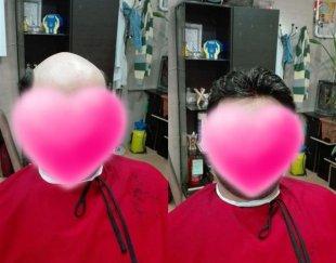 کاشت و ترمیم مو بدون عمل جراحی با بالاترین تراکم