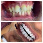 خدمات دندانپزشکی باقیمت مناسب