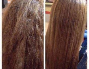 مشاوره پوست و مو