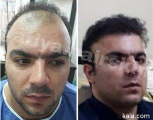کاشت مو با بالاترین تراکم در جشنواره پائیزه با ۱ میلیون اف
