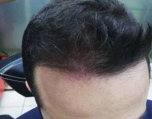 پرپشتی مو در یک جلسه،بدون جراحی و کاشت مو ،اسکالپ سر